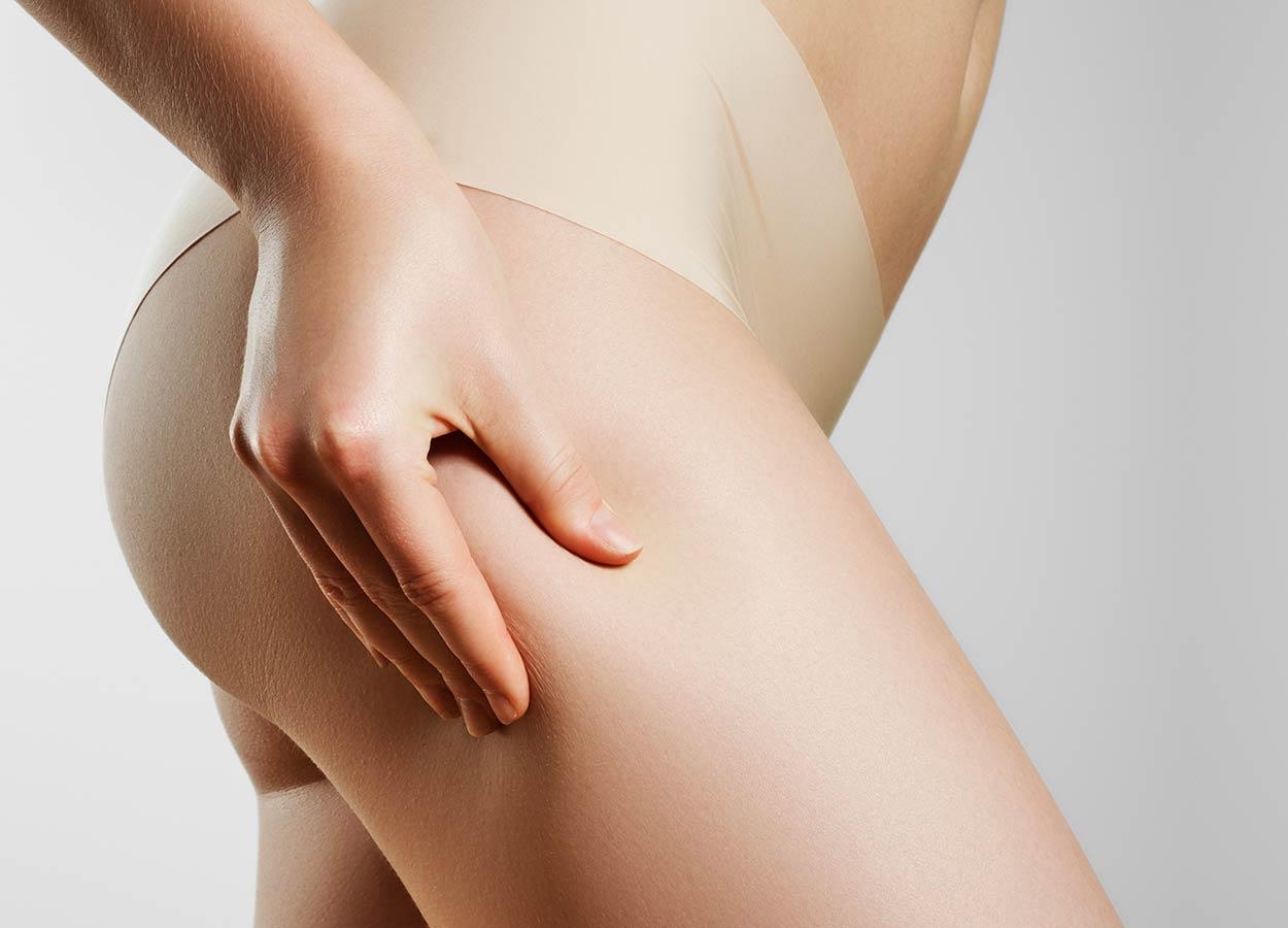 Cellulite behandeln Wiesbaden Dehnungsstreifen