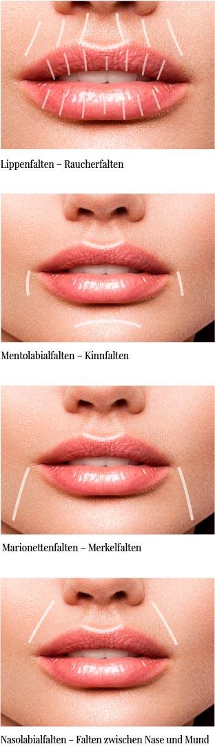 Lippenfalten Mundfalten Darstellung Wiesbaden